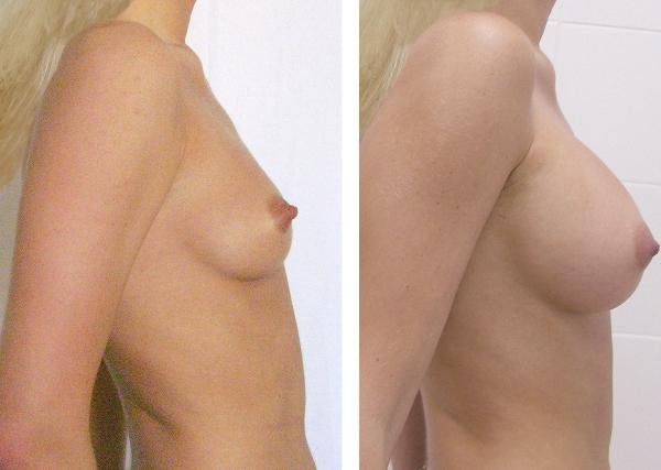 Увеличить объём груди