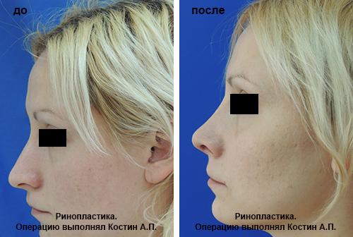 Как тональником уменьшить нос